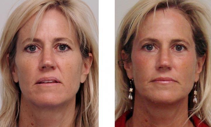 Карбокситерапия до и после